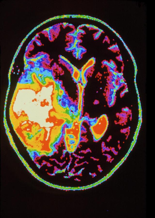 Colour Mri Scan Of Brain Tumour: Oligodendroglioma by Gca/science Photo  Library