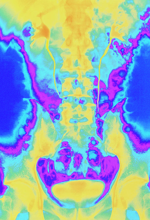 Pyelogram Photograph - Colour X-ray Of Healthy Kidneys by Mehau Kulyk/science Photo Library