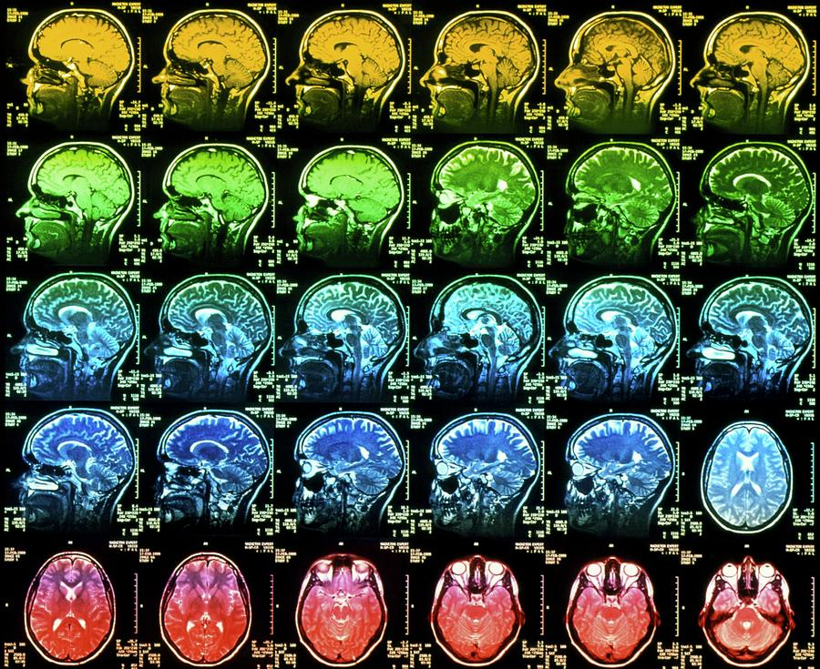 Brain Photograph - Coloured Mri Scans Of A Healthy Human Brain by Simon Fraser/science Photo Library