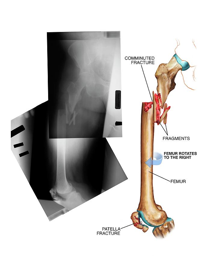 Comminuted Fracture Of The Femur Photograph By John T Alesi