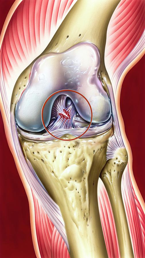 Anterior Cruciate Ligament Photograph - Cruciate Ligament Knee Injury by John Bavosi