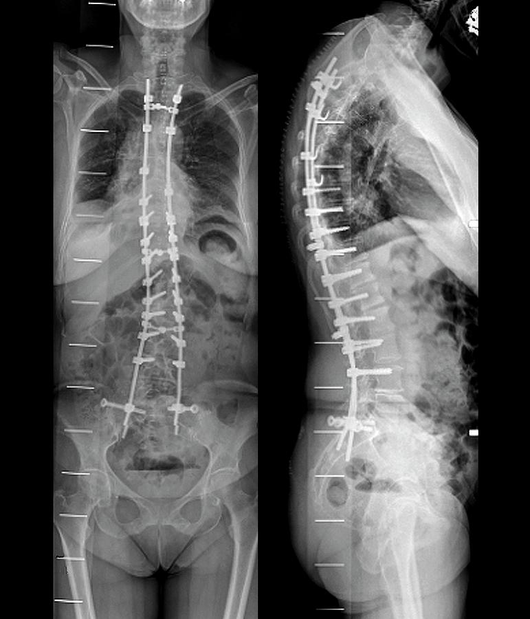 Black And White Photograph - Curvature Of The Spine After Surgery by Zephyr