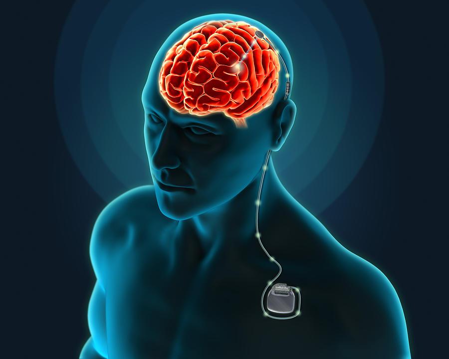 Brain stimulation orgasm