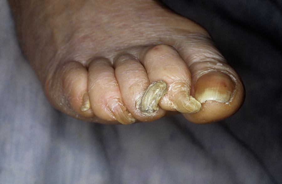 Onychogryphosis Photograph - Deformed Toenails by Mike Devlin/science Photo Library