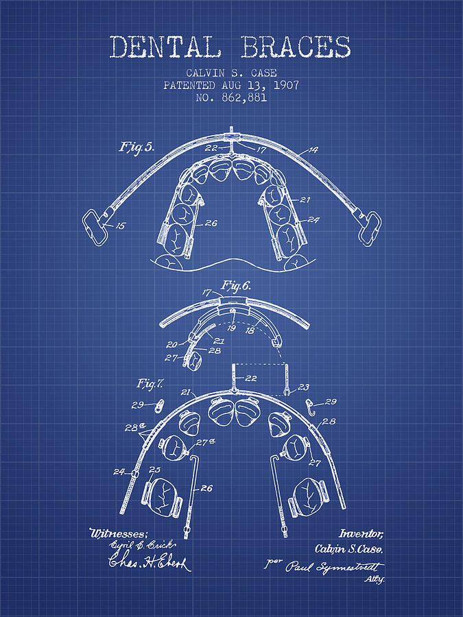 Dental braces patent from 1907 blueprint digital art by aged pixel dentist digital art dental braces patent from 1907 blueprint by aged pixel malvernweather Image collections