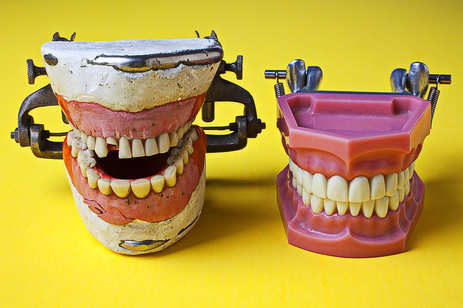 Dentist Photograph - Dental Models by Garry Gay