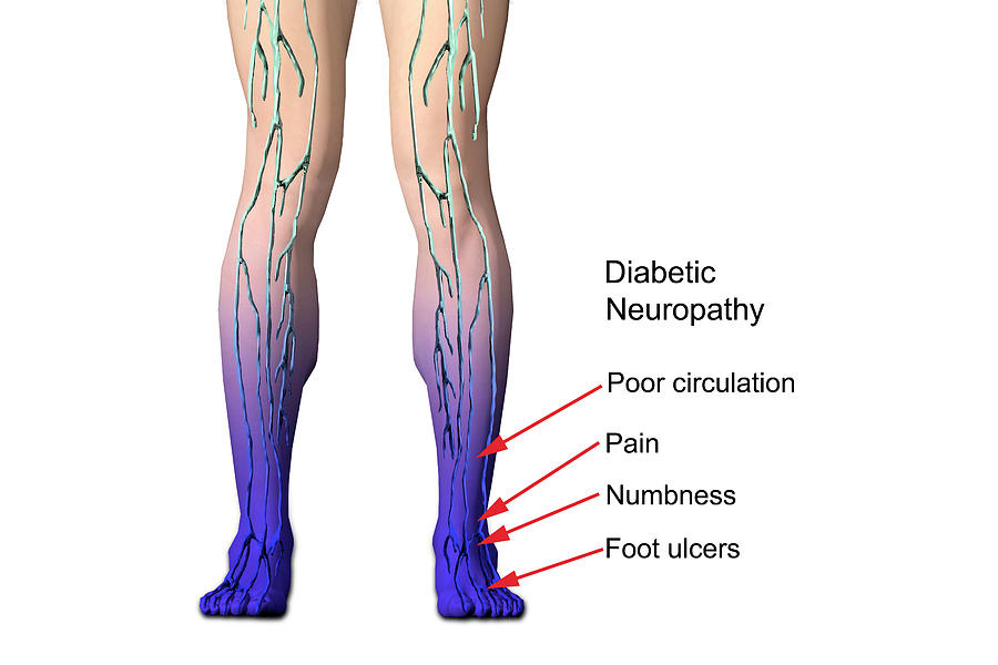 Diabetic Photograph - Diabetic Neuropathy by Carol & Mike Werner
