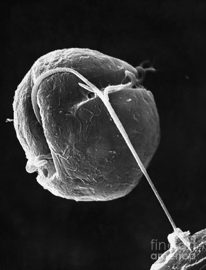 Dinoflagellate Photograph - Dinoflagellate by David M. Phillips