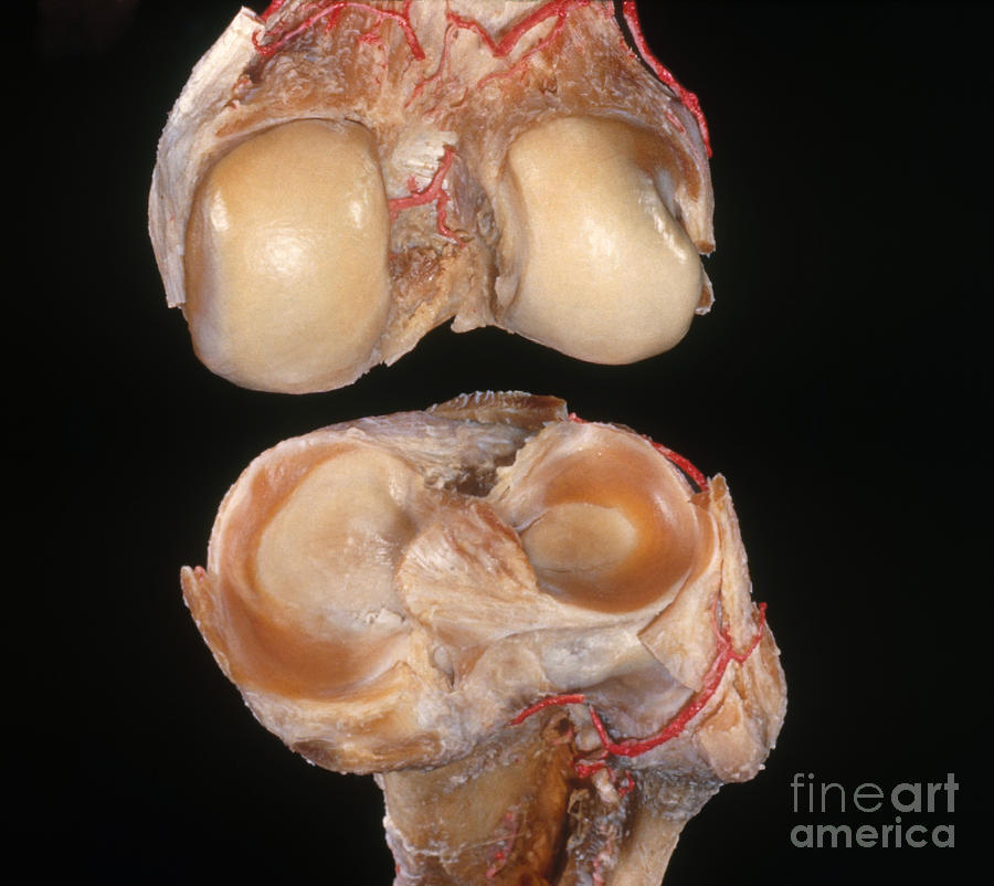 Disarticulated Knee Joint Photograph by VideoSurgery