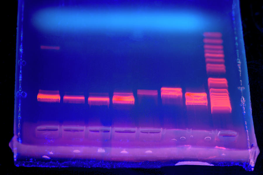 Electrophoresis Gel Photograph   Dna Electrophoresis Under Uv Light By  Louise Murray