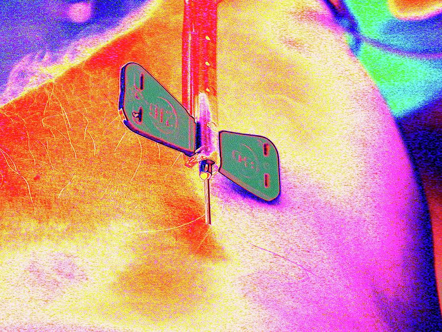 Drawing Blood With A Butterfly Catheter by Larry Berman