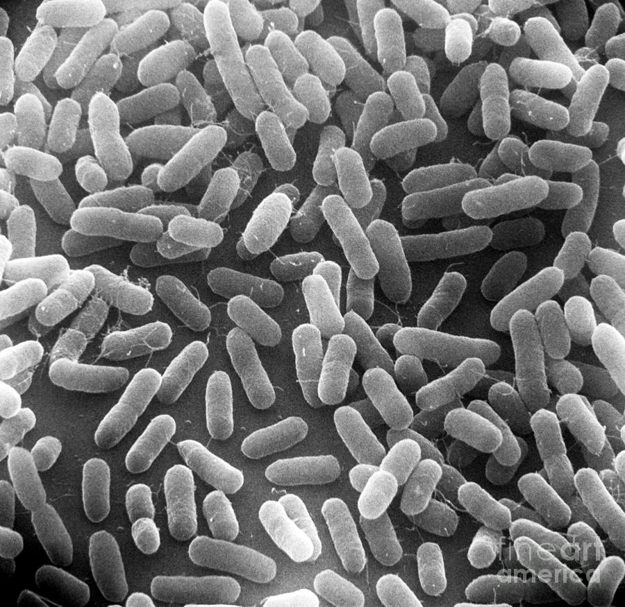 eschericia coli the bacterial beast Escherichia coli is one of the most frequent causes of many common bacterial infections, including cholecystitis, bacteremia, cholangitis, urinary tract infection (uti), and traveler's diarrhea, and other clinical infections such as neonatal meningitis and pneumonia.