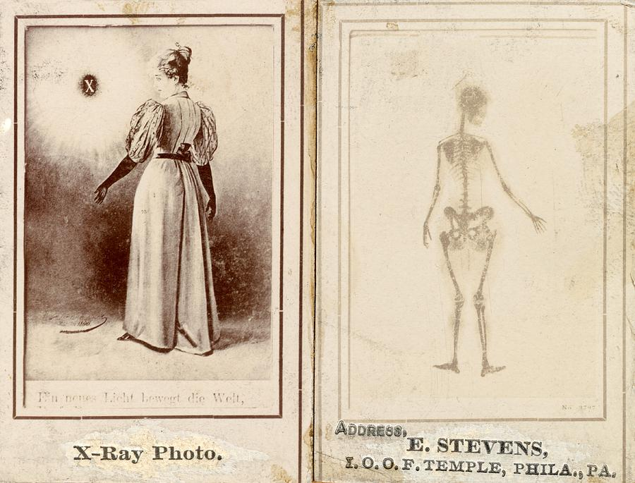 Human Photograph - Early X-ray Demonstration, 1896 by Science Photo Library
