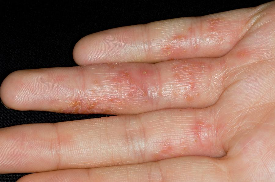 Eczema On The Fingers Photograph by Dr P. Marazzi/science ...