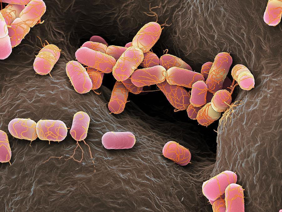 E. Coli Photograph - Escherichia Coli Bacteria by Martin Oeggerli/science Photo Library