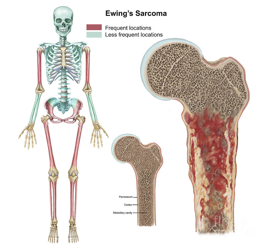 Ewings Sarcoma Locations Digital Art