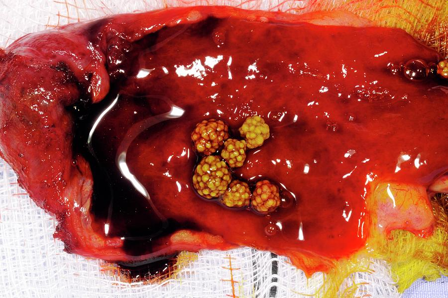 Gallstone Photograph - Excised Gallbladder And Gallstones by Dr P. Marazzi/science Photo Library