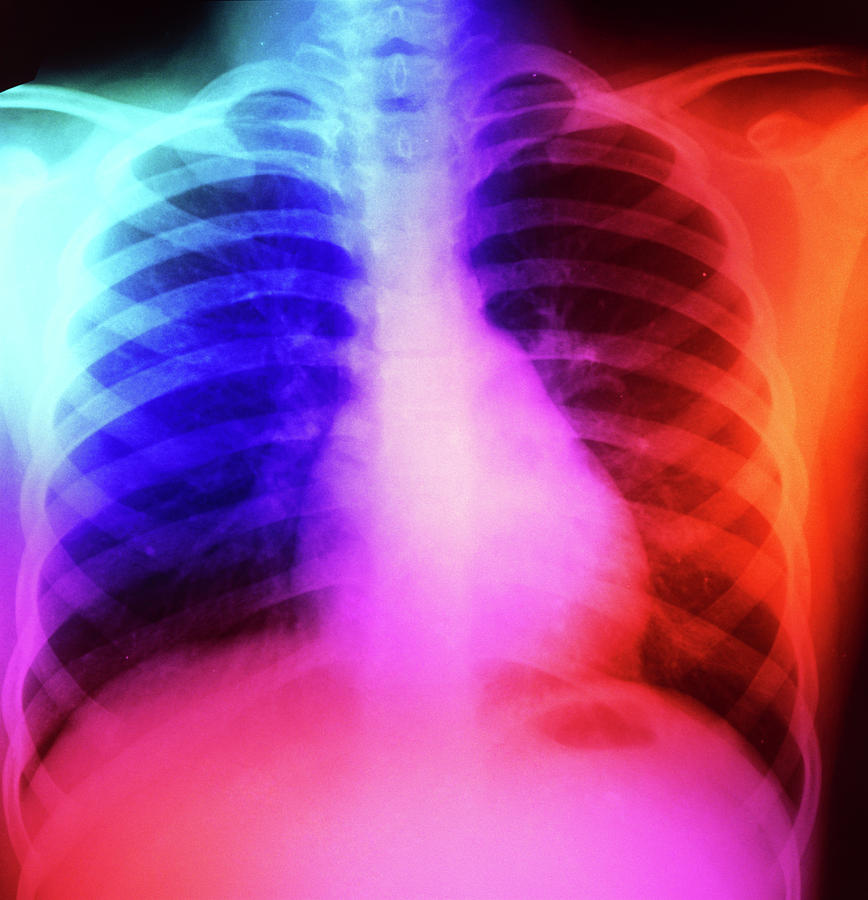 X-ray Photograph - False-colour Chest X-ray: Normal 7 Year-old Child by Science Photo Library