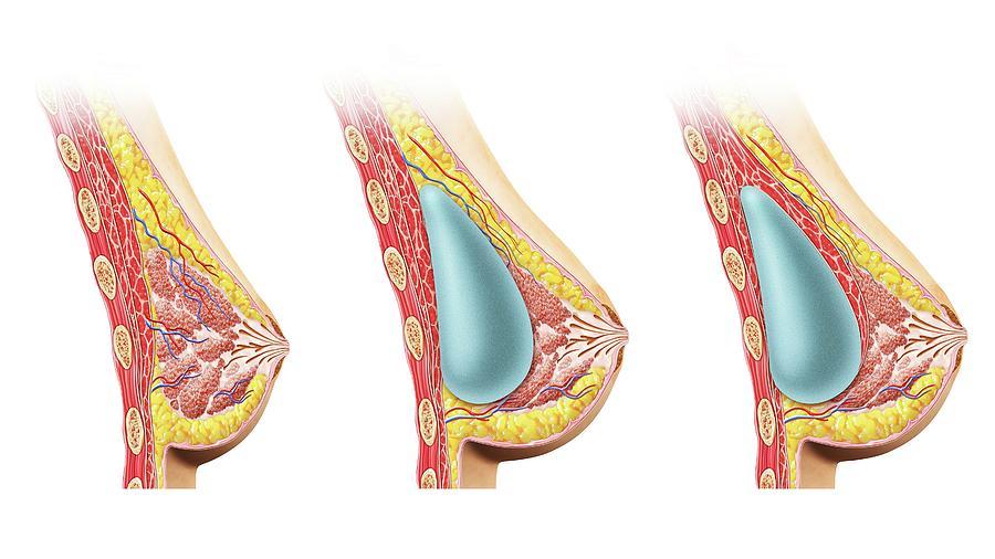 Artwork Photograph - Female Breast Implant by Leonello Calvetti