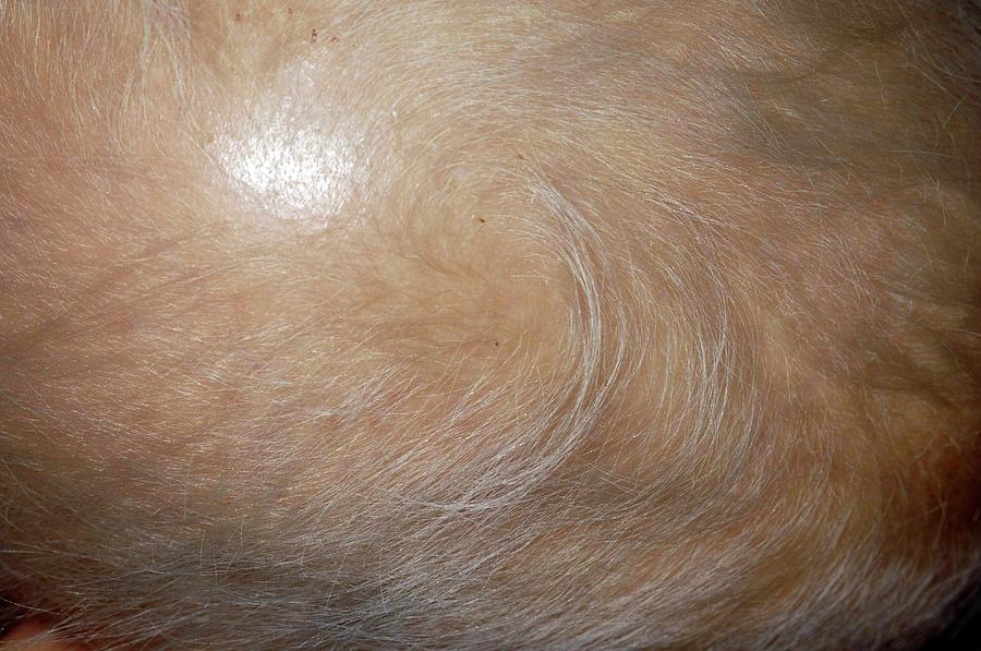 Fine Hair In Ectodermal Dysplasia
