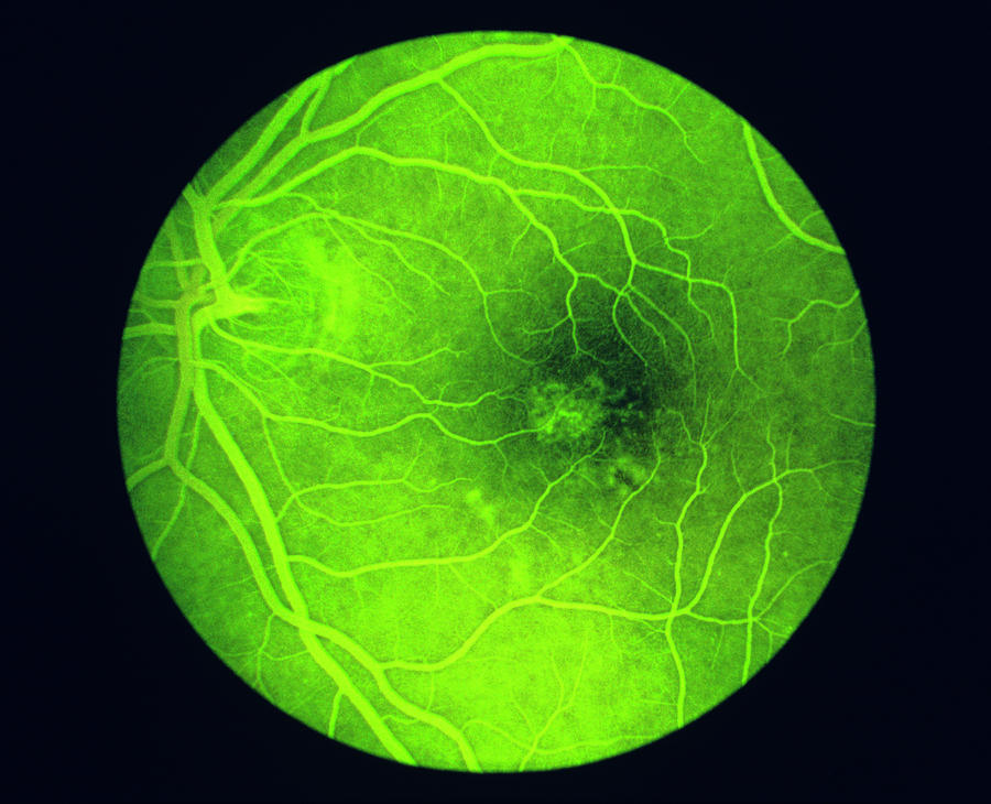 Angiogram Photograph - Fluorescein Angiogram Of A Healthy Eye Retina by Paul Parker/science Photo Library