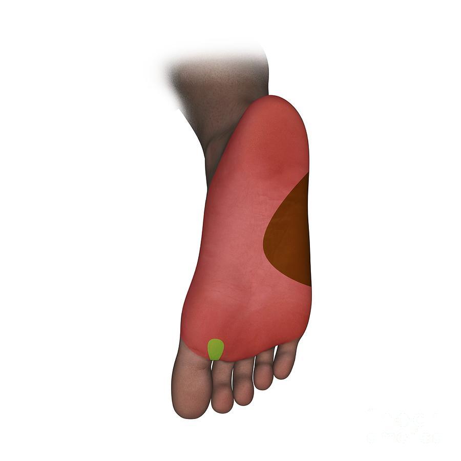 Foot Plantar Nerve Regions Artwork Photograph By D L Graphics