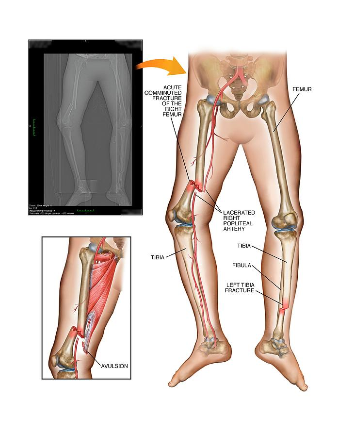 Fractures Of Femur And Tibia Photograph By John T Alesi