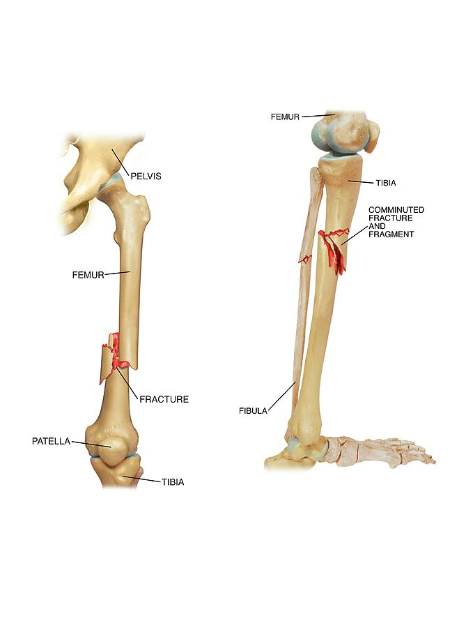 Fractures Of The Femur And Tibia Photograph By John T Alesi