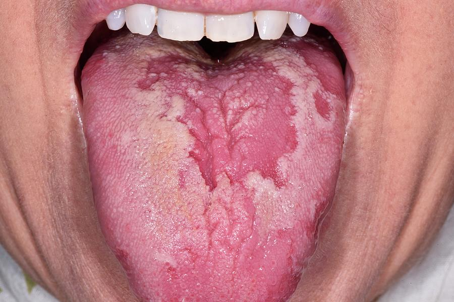 56 Photograph - Geographic Tongue by Dr P. Marazzi/science Photo Library