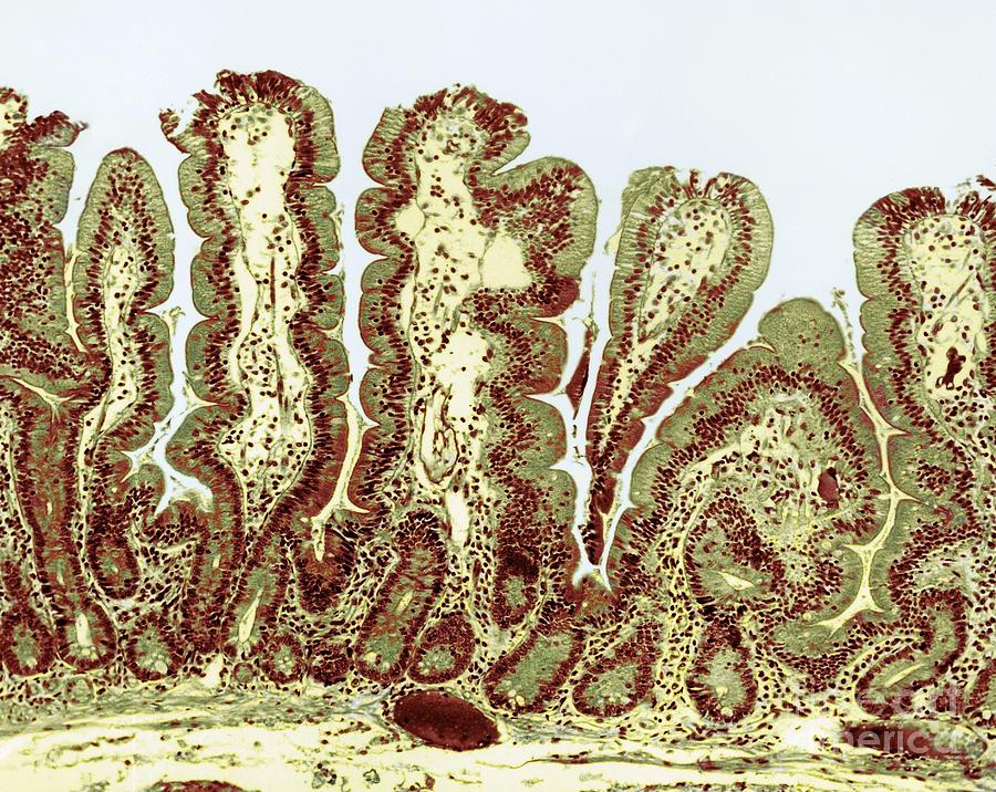 Light Micrograph Photograph - Giardiasis Light Micrograph by Science Source
