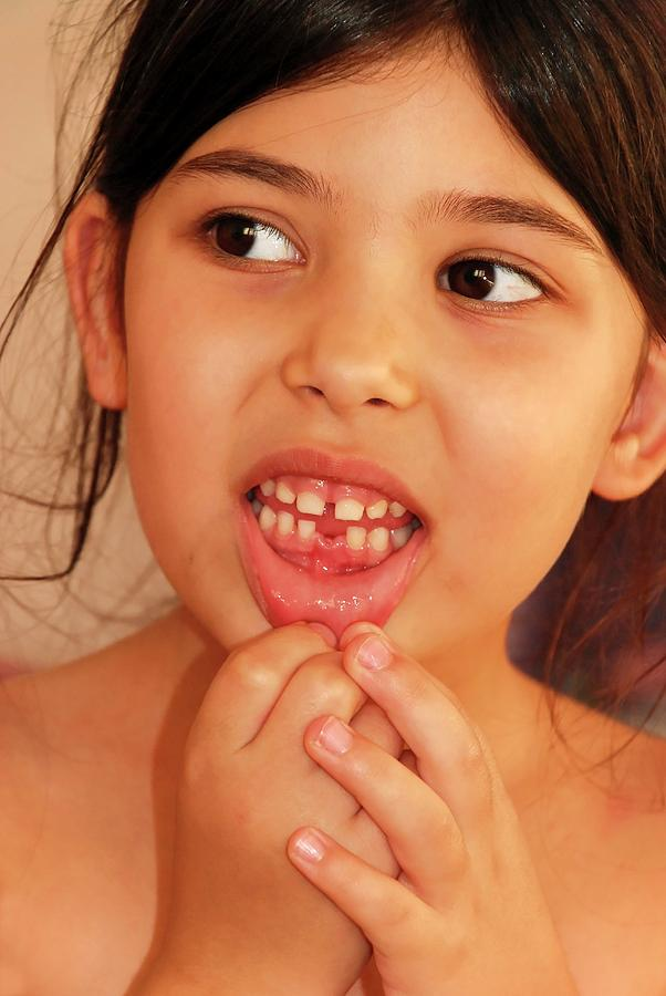 Ageing Photograph - Girl With Missing Tooth by Photostock-israel