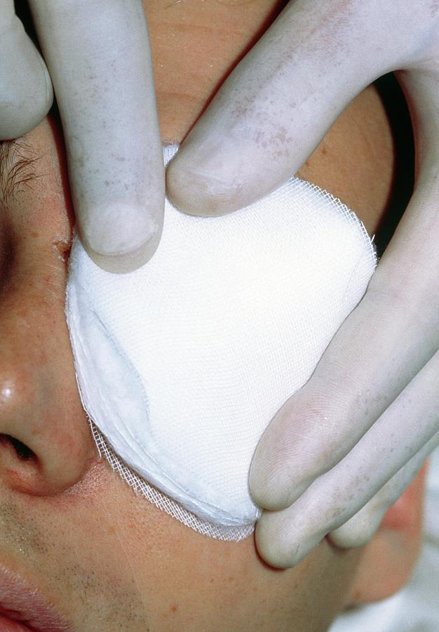 Bandage Photograph - Gloved Fingers Apply Dressing To Patients Eye by Garry Watson/science Photo Library