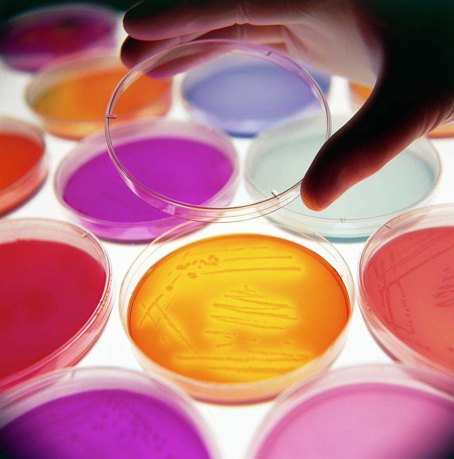 Petri Dish Culture Photograph - Hand Puts Lid On Petri Dish With Bacterial Culture by Tek Image/science Photo Library
