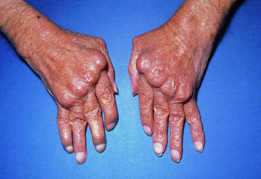 Hands With Rheumatoid Arthritis Photograph By James Stevenson Science Photo Library