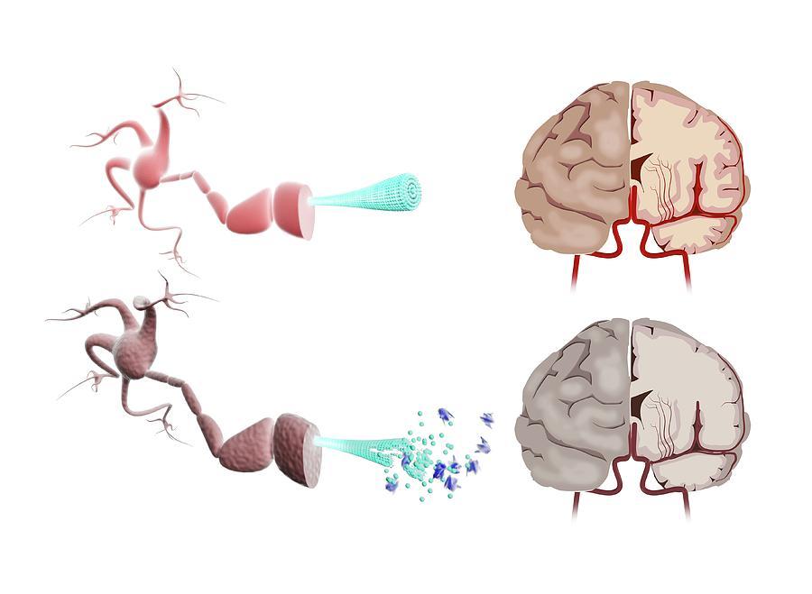 Cutout Photograph - Healthy And Alzheimers Brains by Gunilla Elam