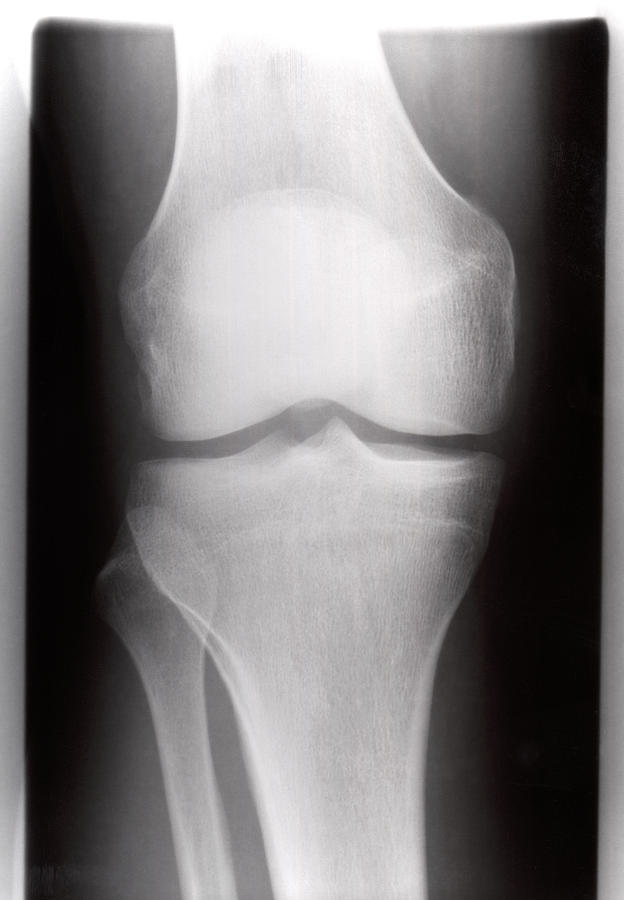 Xray Photograph - Healthy Knee by Daniel Sambraus/science Photo Library