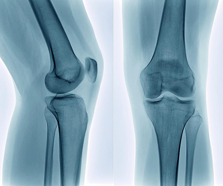Healthy Knee, X-ray Photograph by Zephyr