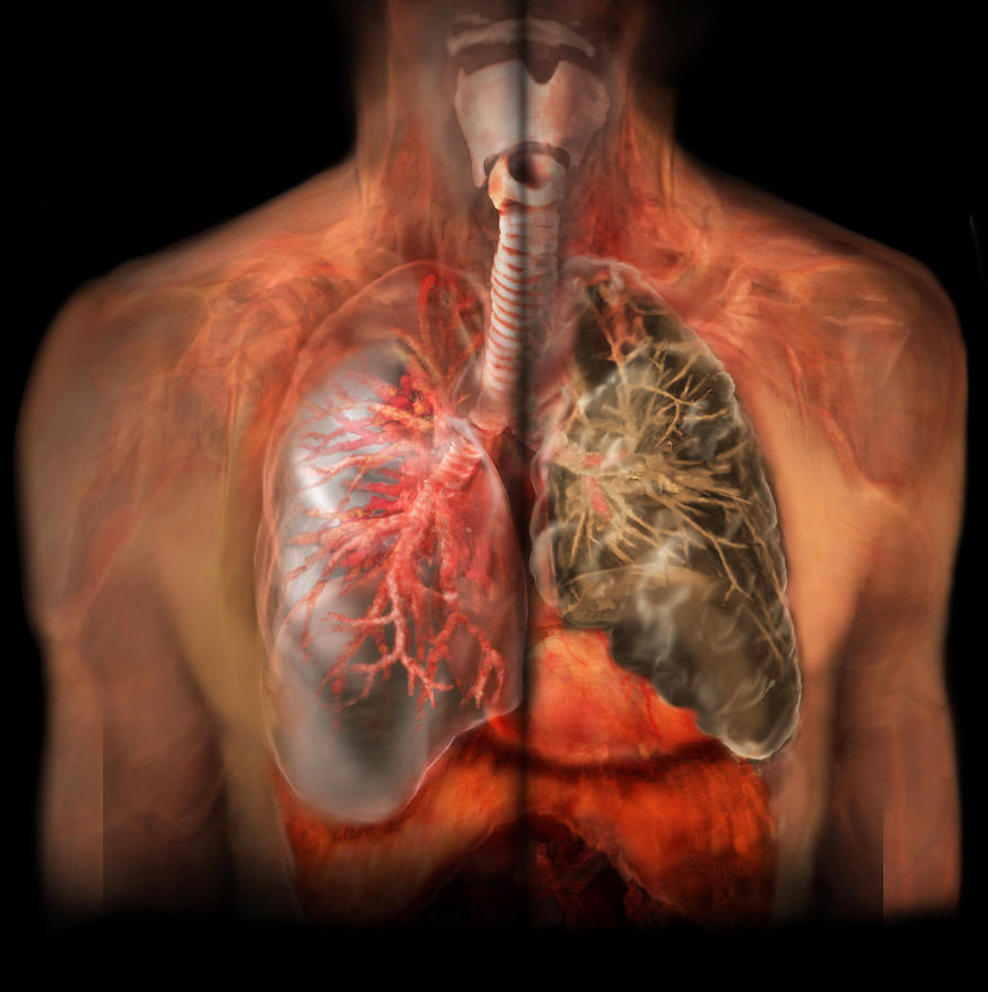 healthy lung vs smokers lung photograph by anatomical travelogue