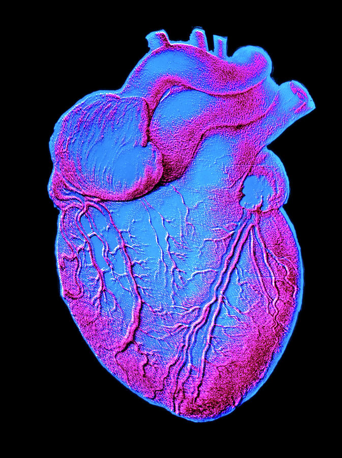 Artwork Photograph - Heart Artwork by Alain Pol, Ism/science Photo Library