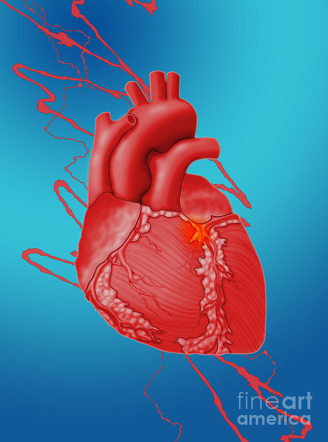 Heart Attack, Conceptual Illustration Photograph by Monica Schroeder