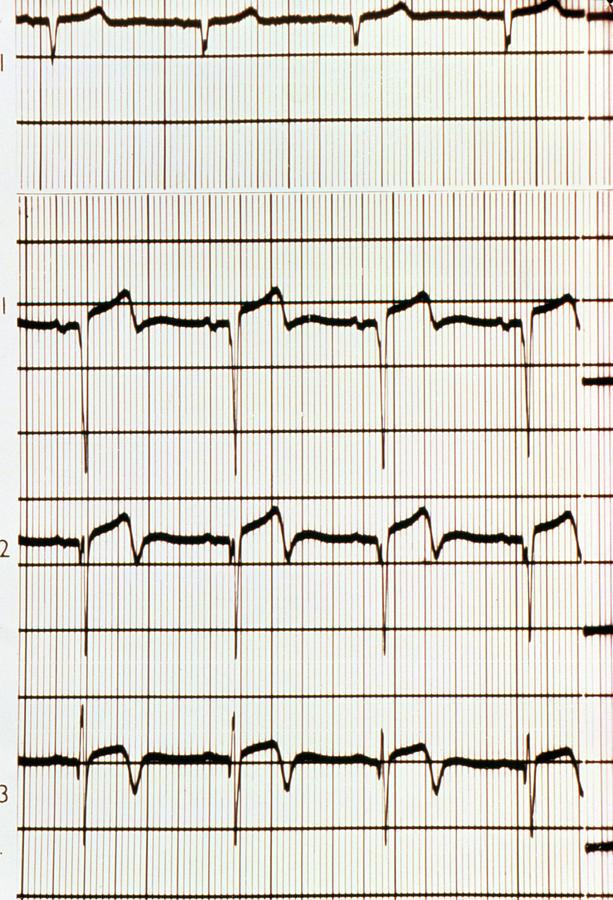 Heart Attack: Ecg Showing Myocardial Infarction