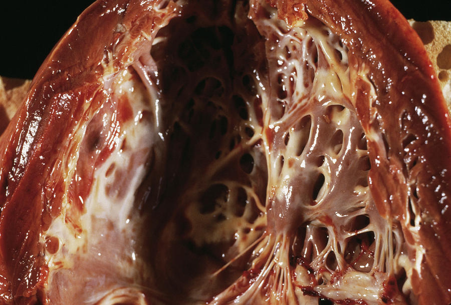 Endocardial Photograph - Heart Fibroelastosis by Cnri/science Photo Library