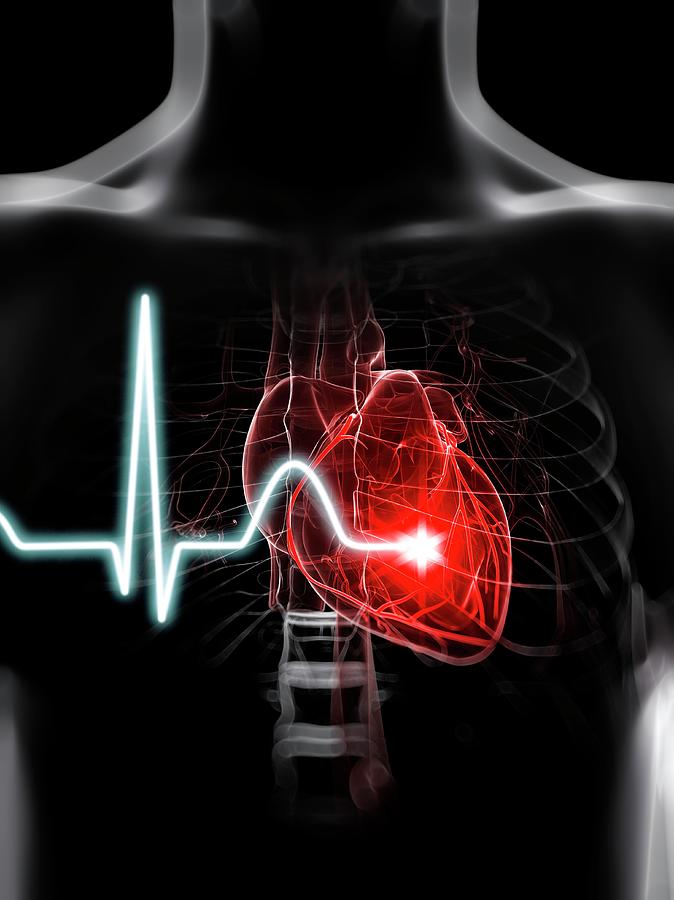 Artwork Photograph - Heartbeat by Sciepro/science Photo Library