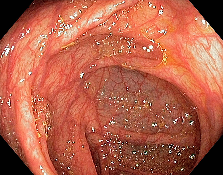 Hepatic Flexure Of The Colon Photograph By Gastrolab