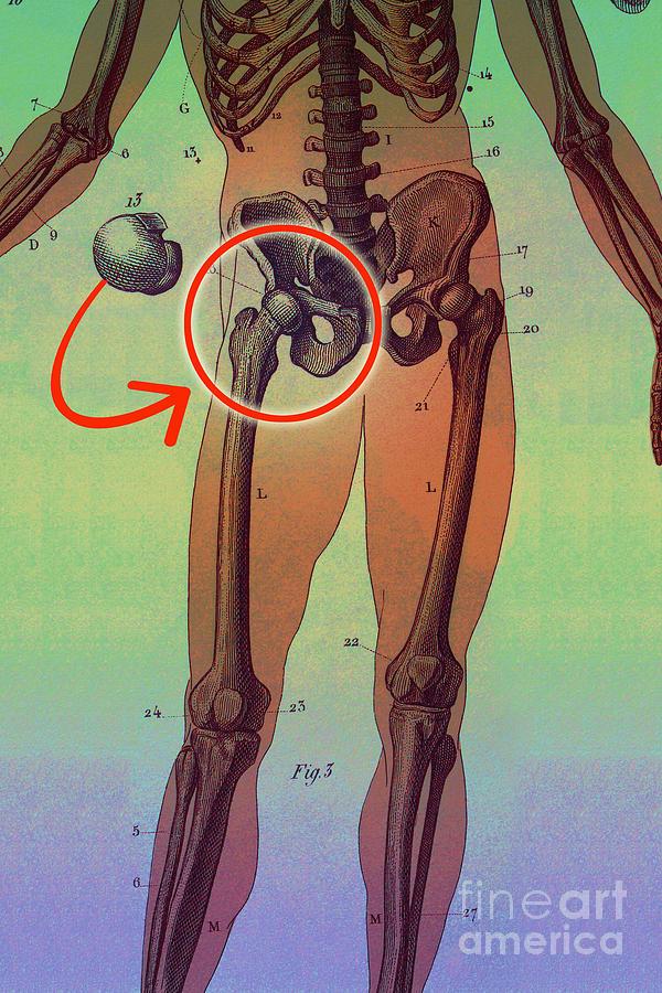 Medical Photograph - Hip Replacement by Dennis D Potokar