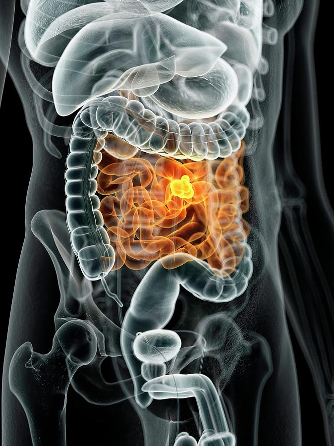 Artwork Photograph - Human Bowel Cancer by Sciepro