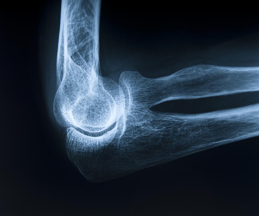 Human Elbow Bone Photograph by GeorgHanf