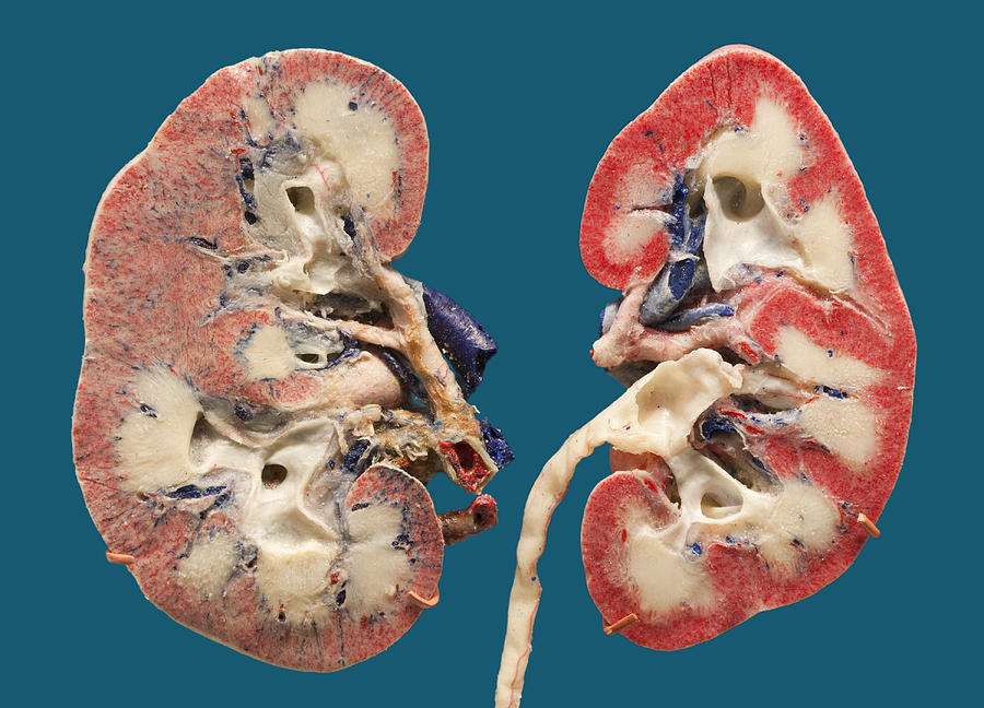 Human Kidney Sections Plastinated Photograph By Science Stock