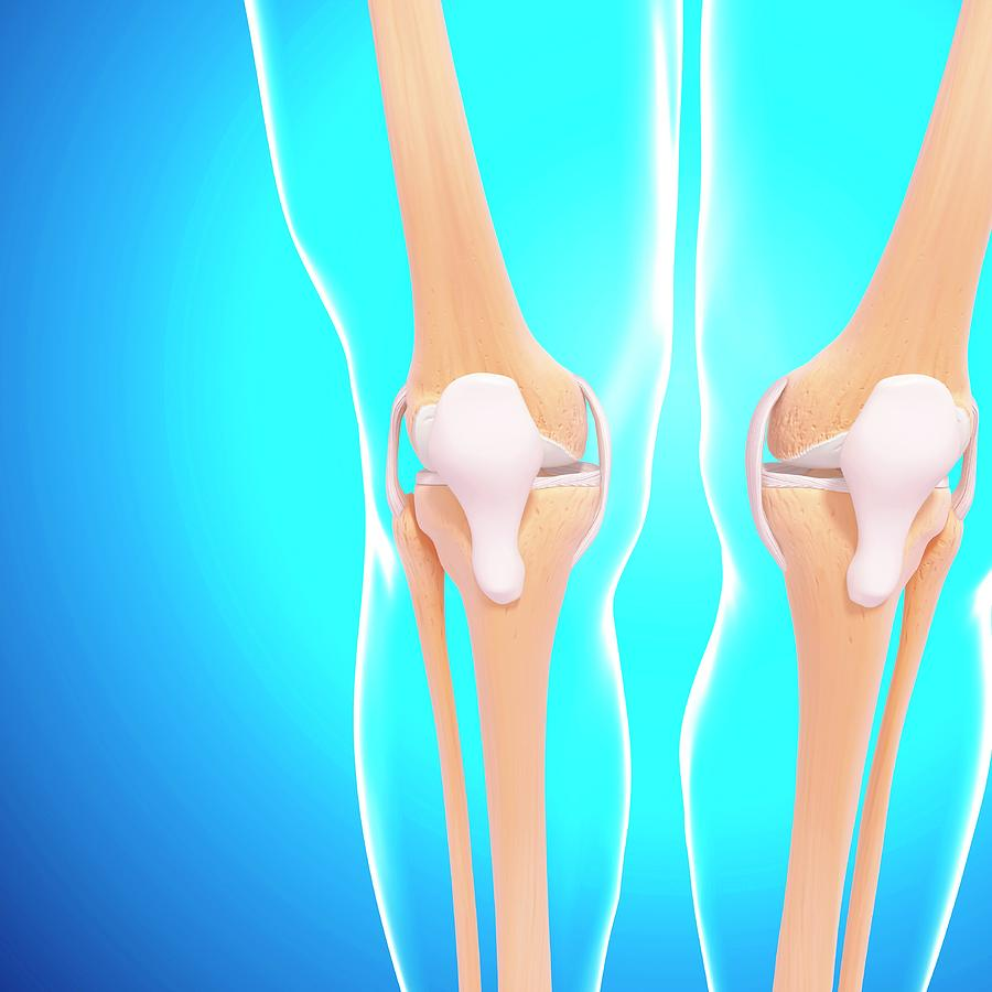 Artwork Photograph - Human Knee Joints by Pixologicstudio