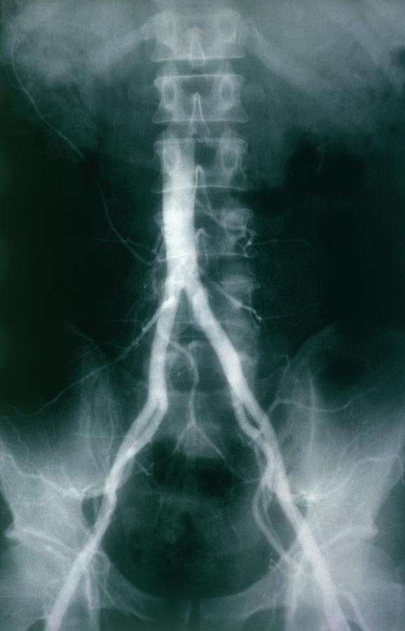 Iliac Artery Photograph - Iliac Arteries by Cnri/science Photo Library